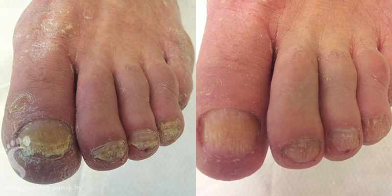 Средство для лечения грибковых заболеваний ногтей