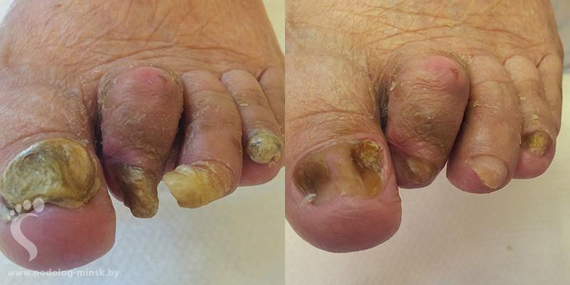 Препарат против грибка ногтей ног