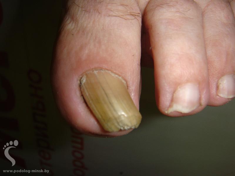 Почему на ногах утолщаются ногти