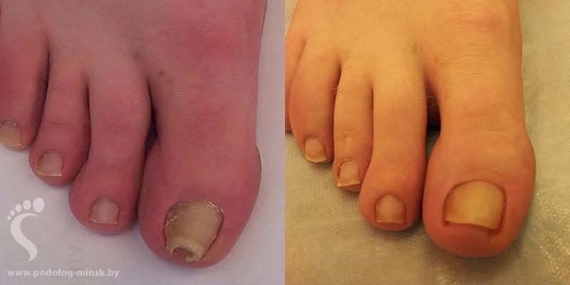 Толстянка лечит грибок ногтей
