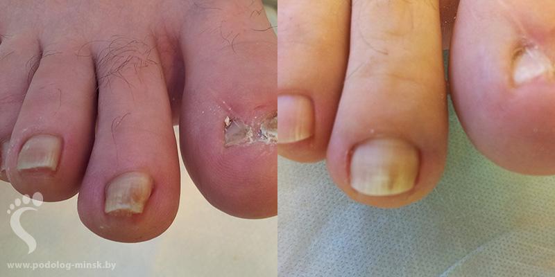 Фото как врастает ноготь в кожу